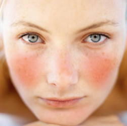 couperose e acne rosacea