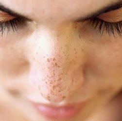 eliminare le macchie scure sulla pelle
